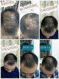 廣西巴馬茶麩洗髮水公司