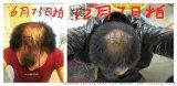 廣西巴馬小黃姜洗髮水能夠使頭皮充血